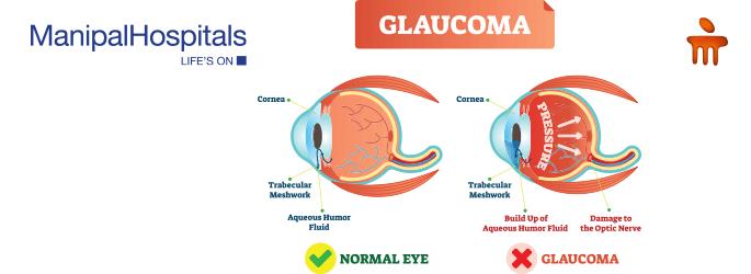 glaucoma treatment in Delhi