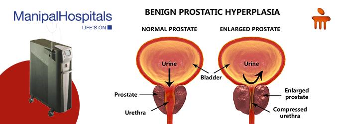 Urologist In Mangalore