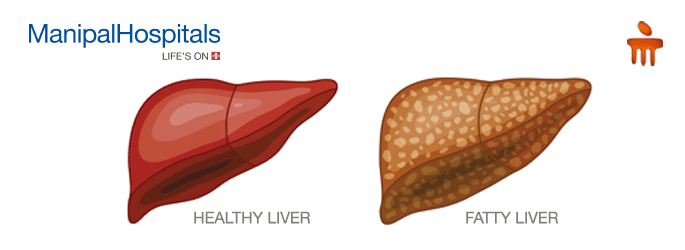 liver hospital in Mangalore