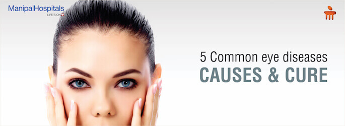 top eye specialist in Bangalore