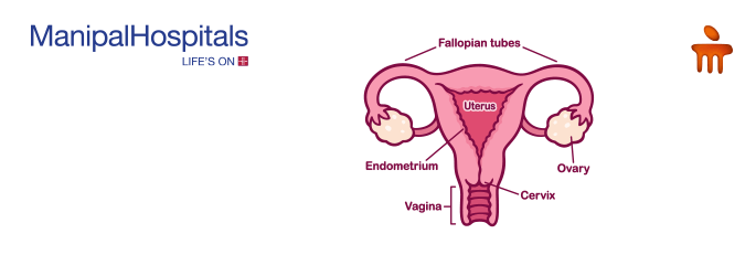 gynecologist in Delhi