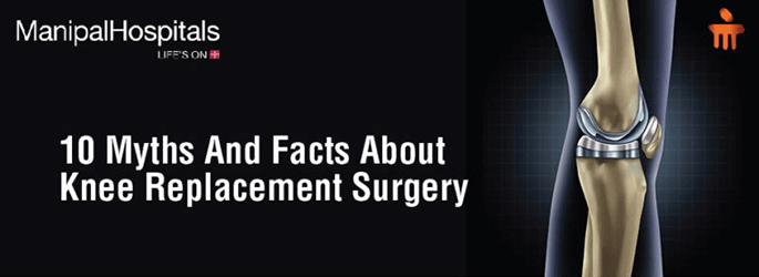 Myths And Facts About Knee Replacement