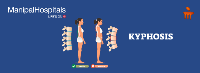 spine treatment in Bangalore