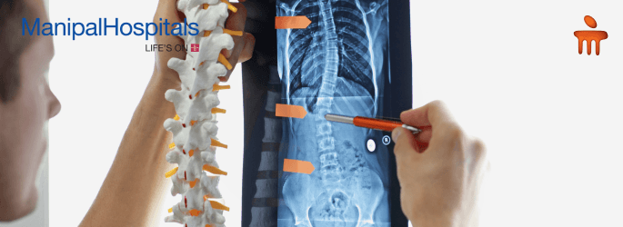 Best Spine Doctor In Bangalore