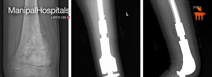 good orthopedic doctor in Bangalore
