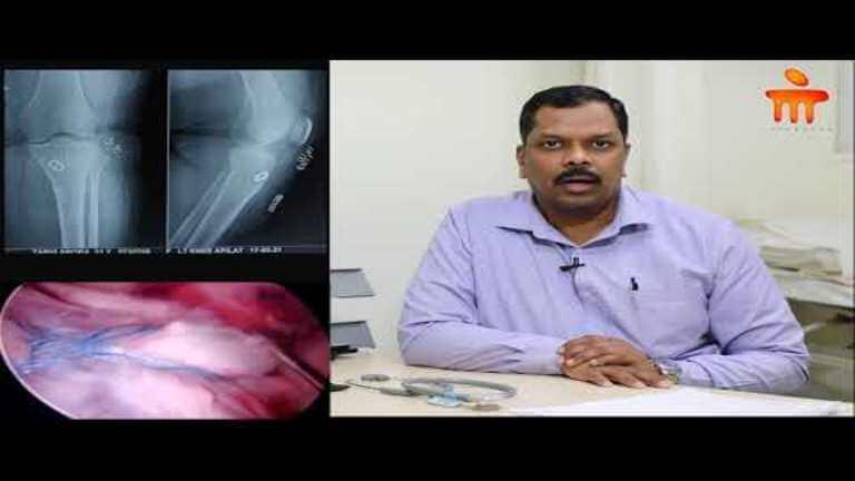 intra-articular-fracture_768x432_(1).jpg