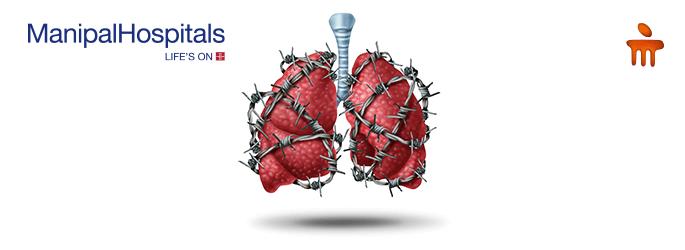 Lung malignancies/cancer treatment in Vijayawada