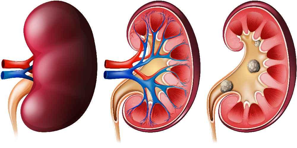 Kidney_Transplant_2.jpg